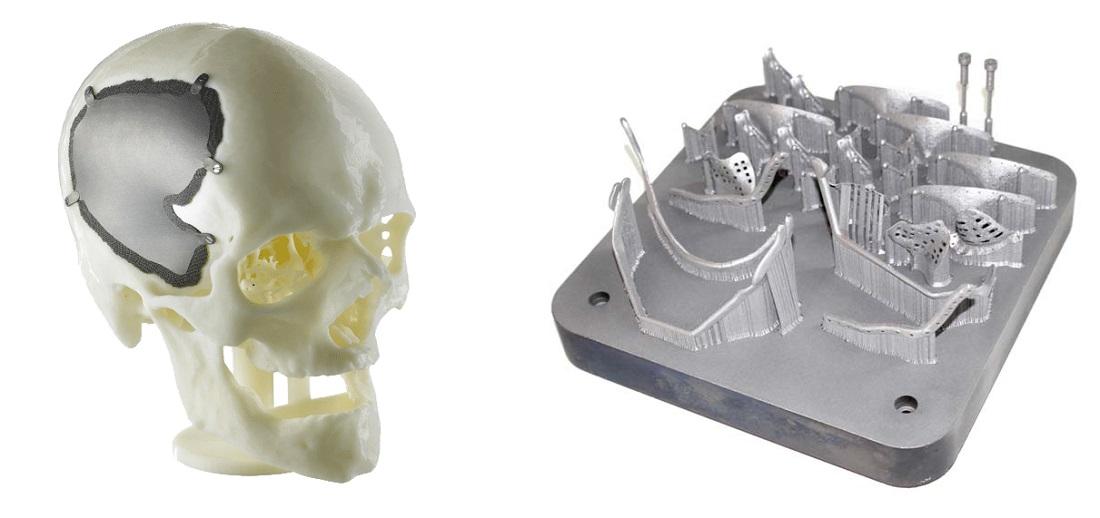 Баннер 3D моделирование и 3D печать имплантатов