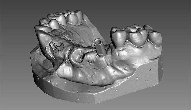 Фото 3D сканирования челюсти
