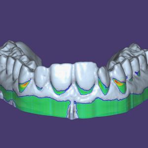 Фото 3д моделирование стоматология 2