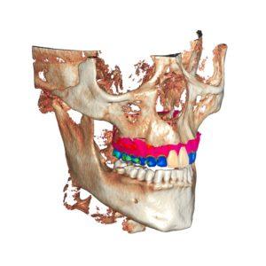 Фото 3д моделирование стоматология 3