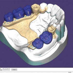 Фото 3д моделирование стоматология 5