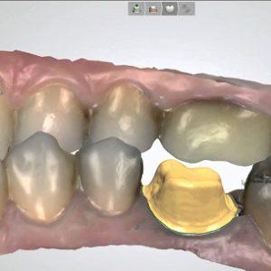 Фото 3д моделирование стоматология 6