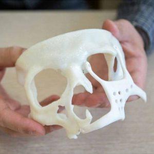 Фото 3D печати лицевой кости
