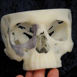 Фото 3D моделирования черепа