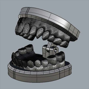 Фото 3D моделирования диагностического шаблона