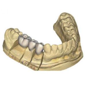 Фото 3D моделирования зубного ряда