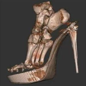 Фото 3D сканирования обуви