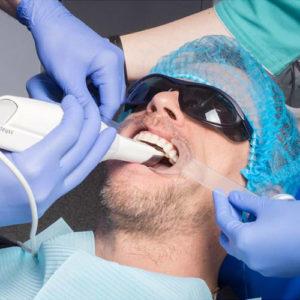 Фото 3D сканирования полости рта