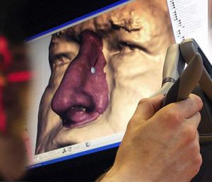 Фото Сканирование в медицине 3d services 6