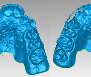 Фото Сканирование в стоматологии 3d services 5