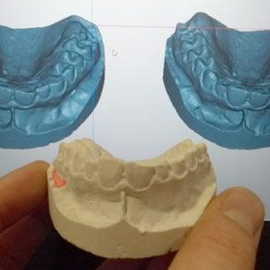 фото Сканирование в стоматологии 3d services 6