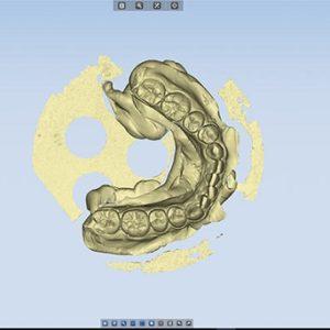 ФотоСканирование в стоматологии 3d services 4