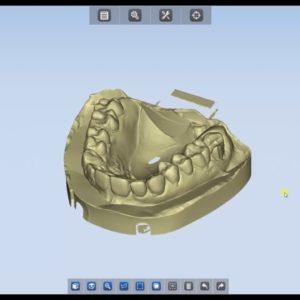 ФотоСканирование в стоматологии 3d services 3