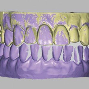 фотоСканирование в стоматологии 3d services 2