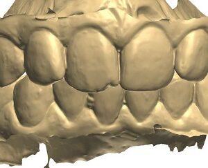 Фото Сканирование в стоматологии 3d services 1