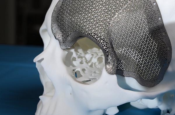 Фото 3D печать в травматологии 1
