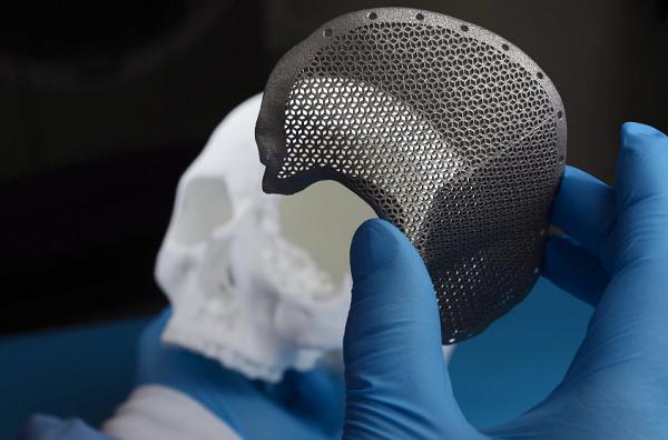 фото 3D печать в травматологии 4