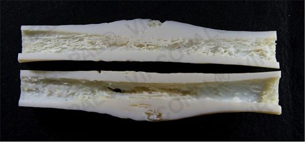 Фото Печать костей на 3D-принтере 1
