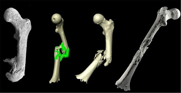 Фото Печать костей на 3D-принтере 2