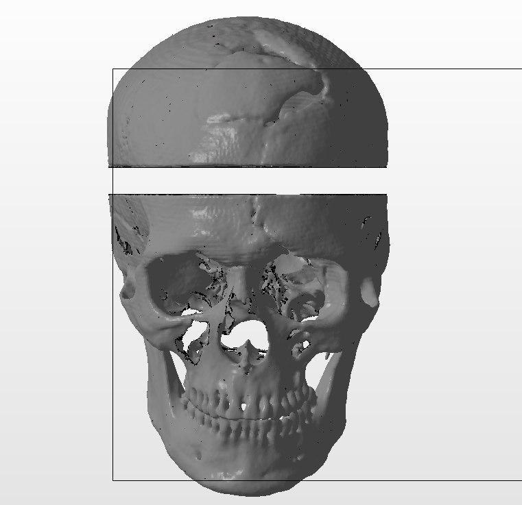 Фото создание 3д модели черепа по КТ
