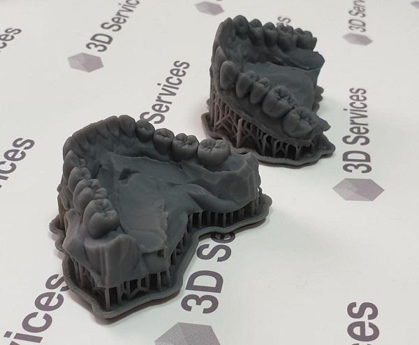 фото Печать мастер-моделей челюсти