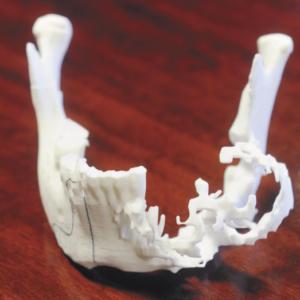 Фото Физические и CAD-модели на основе КТ и МРТ 3д services 9