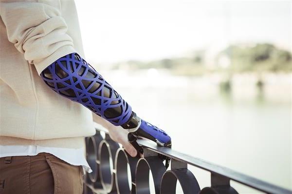 Фото 3Д печатные протезы от UNYQ 1