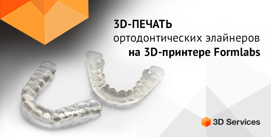 Баннер Ортодонтические элайнеры на Formlabs form 3b
