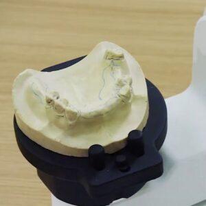 Фото 3D сканирование гипсовых стоматологических слепков 1