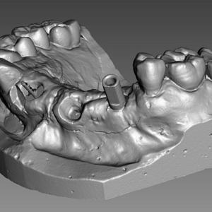 Фото 3D сканирование гипсовых стоматологических слепков 2
