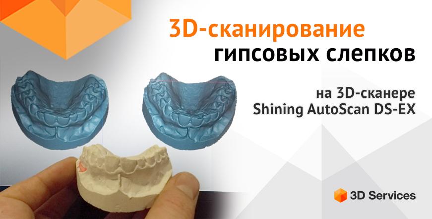 Баннер 3D сканирование гипсовых стоматологических слепков 3d services 1