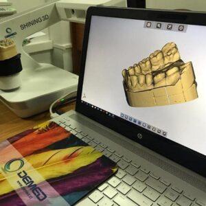 Фото 3D сканирование гипсовых стоматологических слепков 5