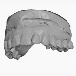 Фото 3D сканирование гипсовых стоматологических слепков 8
