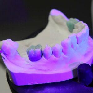 Фото 3D сканирование гипсовых стоматологических слепков 9